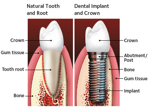 dental-implants-st-louis