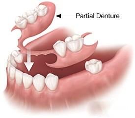 partial-dentures-st-louis