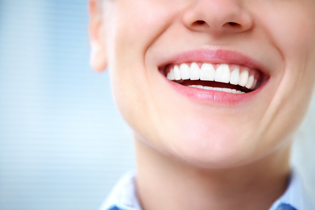 Porcelain Veneers St. Louis