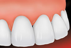 porcelain-veneers-st-louis-2
