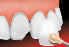 porcelain-veneers-st-louis