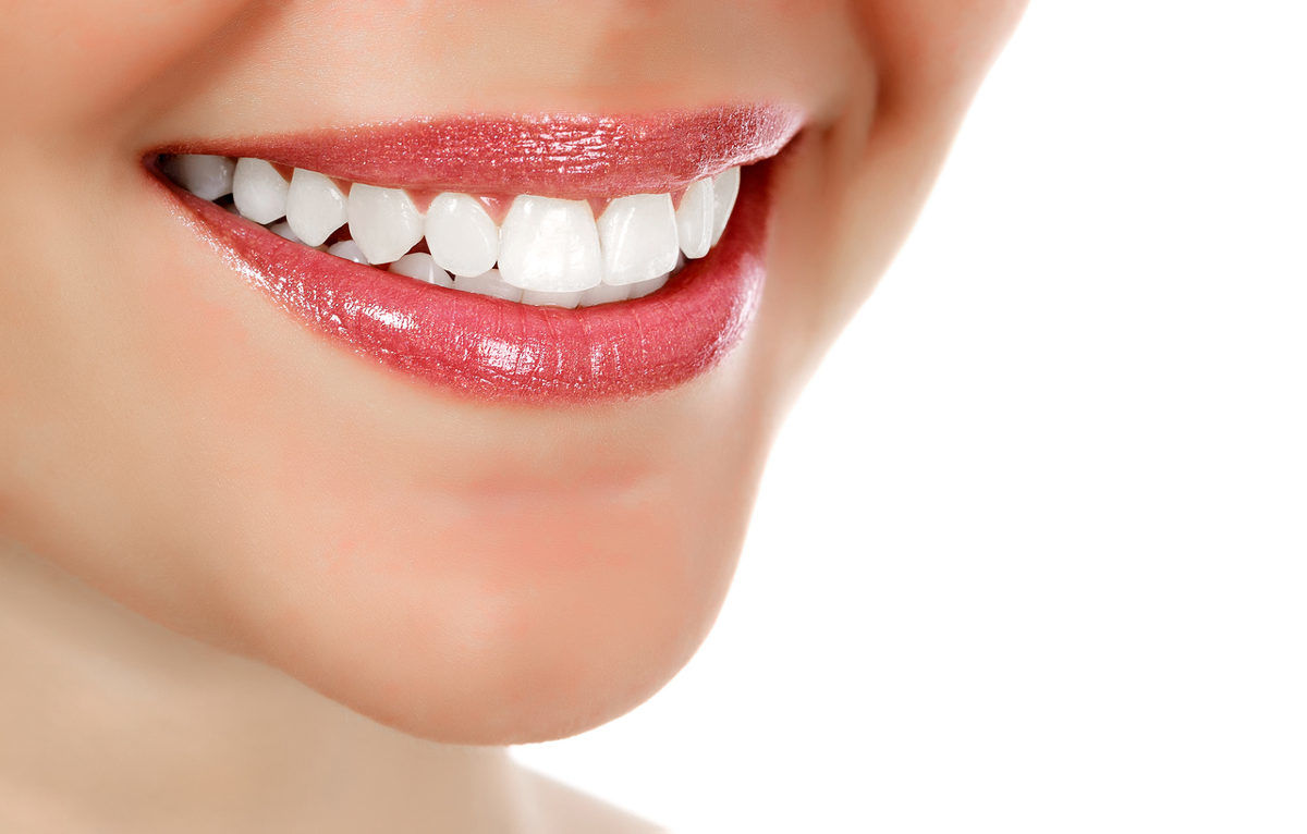 St Louis teeth whitening dentist