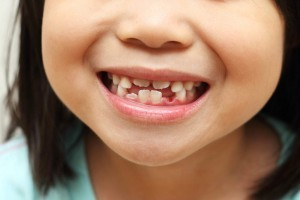 Neglect of Baby Teeth Can Cause More Harm That You May Think!