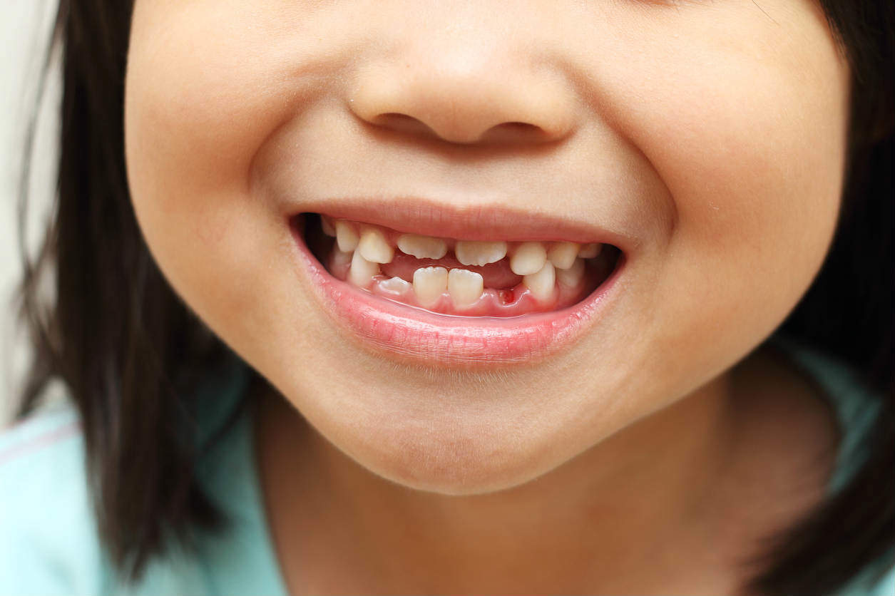 Symptoms of dental teeth in children: is it worth worrying to parents
