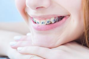 When is the Right Time to Have Your Child Evaluated for Braces?